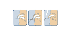 DOYLE NASAL PACKS