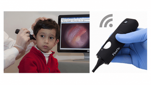 Wireless Video Otoscope